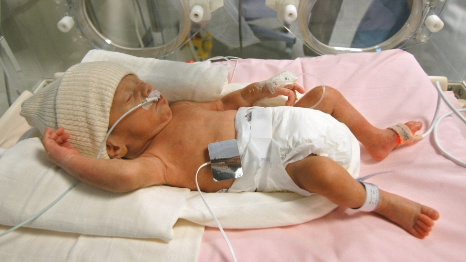 What are the real health care costs for NICU graduates?
