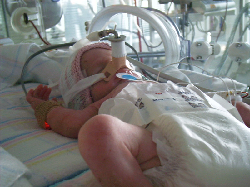Is our approach to ventilation harming babies?